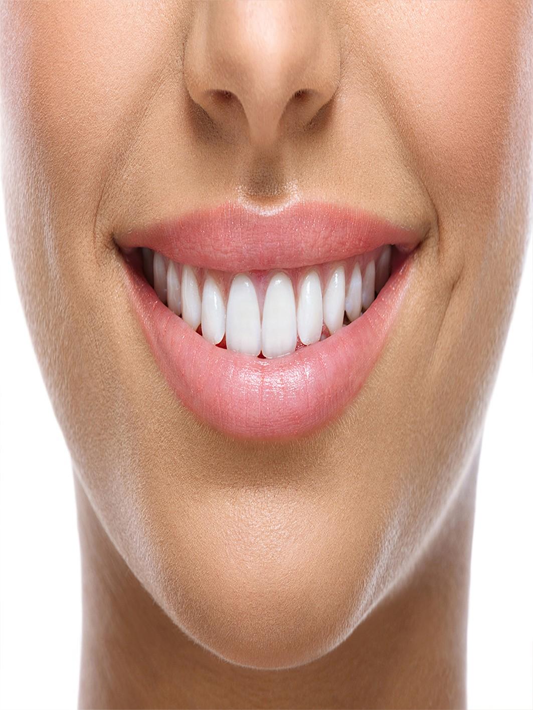 bleka tänderna gravid